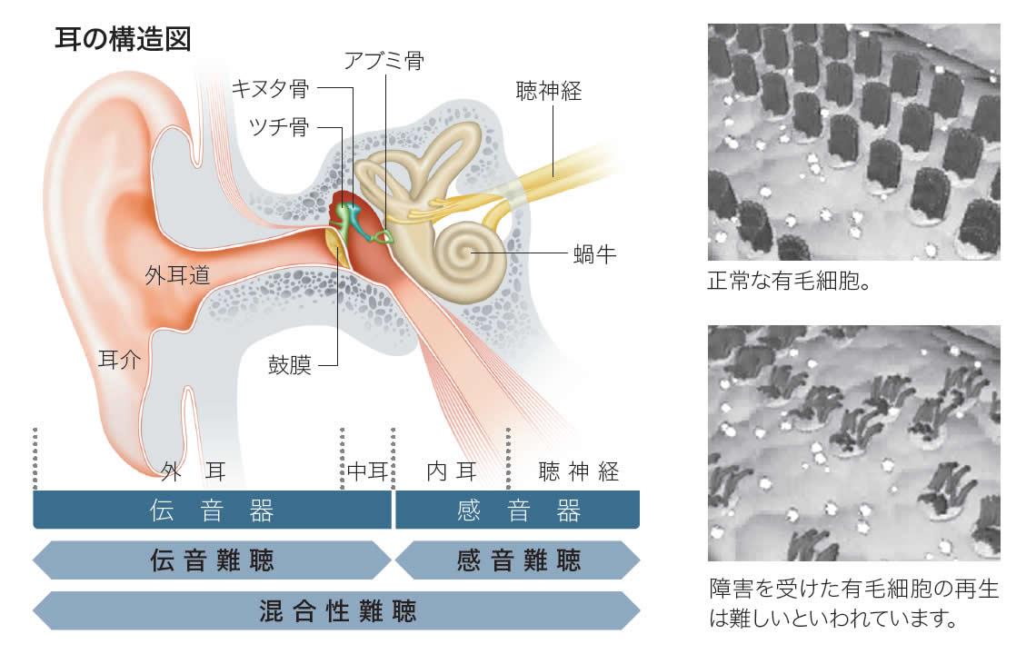 聴力の低下